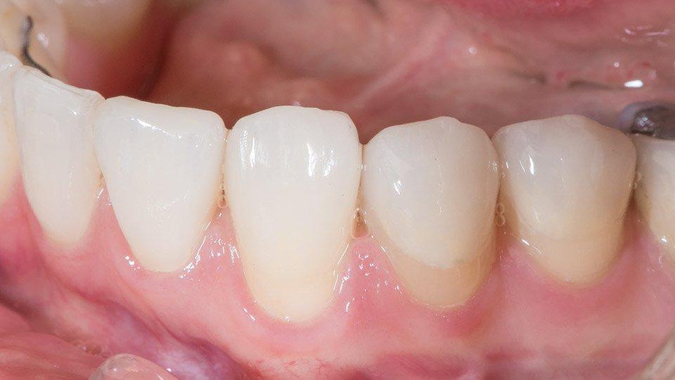 Kuoret hampaisiin valmiina suussa.