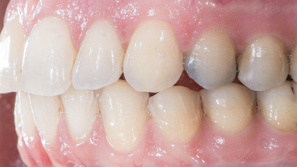 Hampaiden hionta tehty hammaskuoria eli laminaatteja varten.