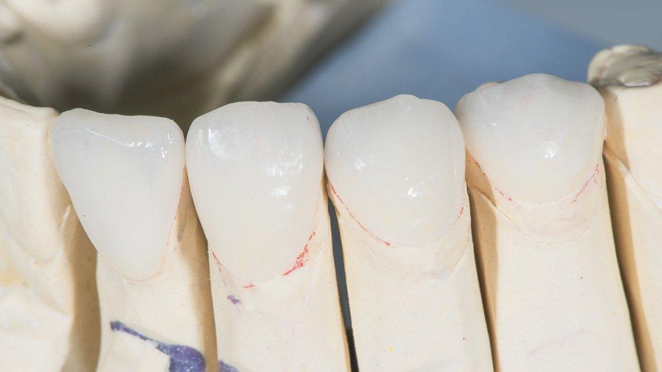 hampaan kiillevaurion korjaaminen hammaskuorilla.