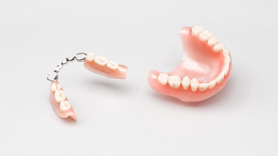 Laajoja hammaspuutoksia voidaan korvata hammasimplanteilla tai muilla hammasproteeseilla.