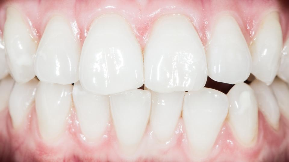 Hammastikku ja hammasvälien puhdistus.