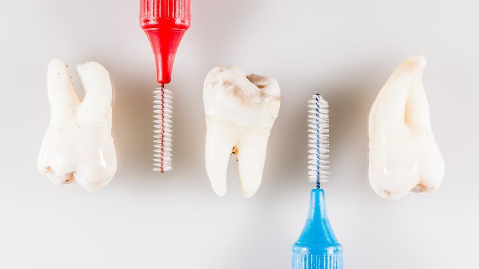 Hammasväliharjat valitaan hammasvälien koon mukaan.