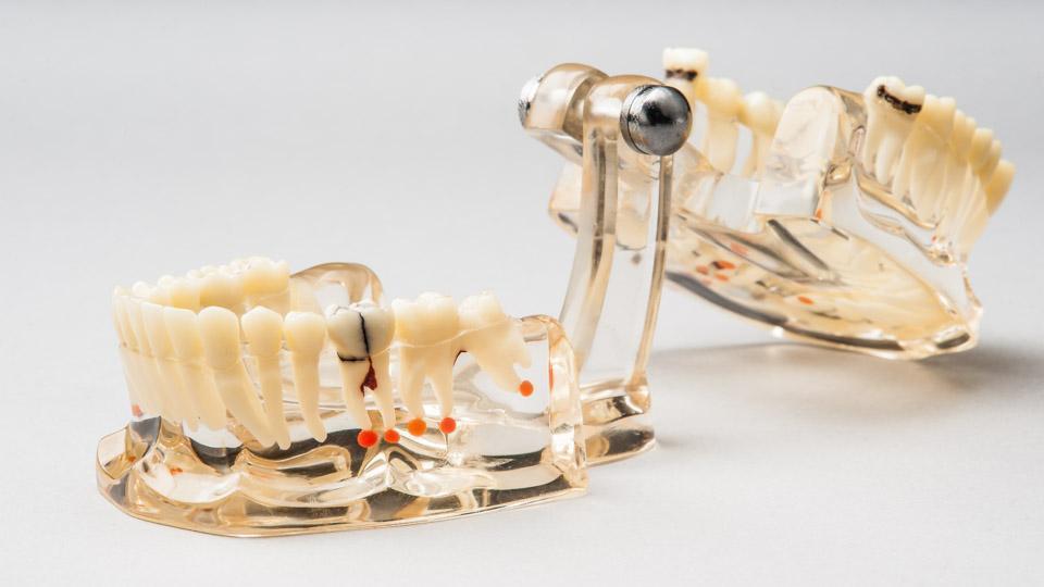 Hampaiden röntgenkuvaus ja hammasröntgen auttaa havaitsemaan hammastulehduksia