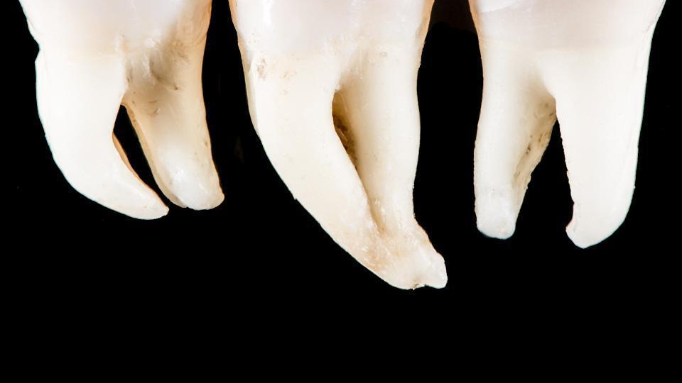 Hampaan juurten lukumäärä ja muoto.