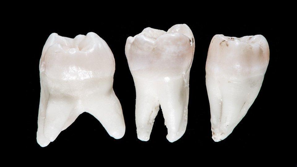 Viisauden Hampaan Poiston Jälkeen
