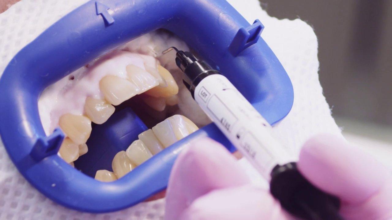 Juurihoidetun hampaan valkaisu