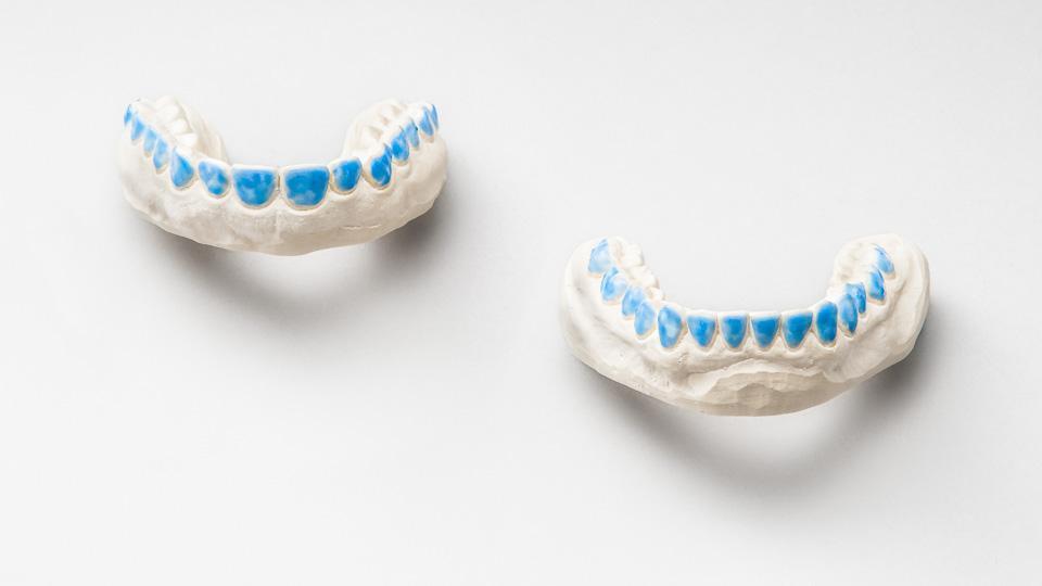 Hampaiden valkaisu kotona voidaan suorittaa kotivalkaisulusikoilla.