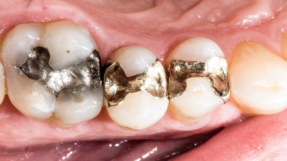 Hampaan paikkaus kullalla on kestävä tapa korjata vaurioitunut hammas.