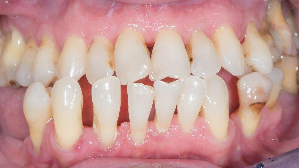 Parodontiitti voi olla yksi syy hampaan poistoon.
