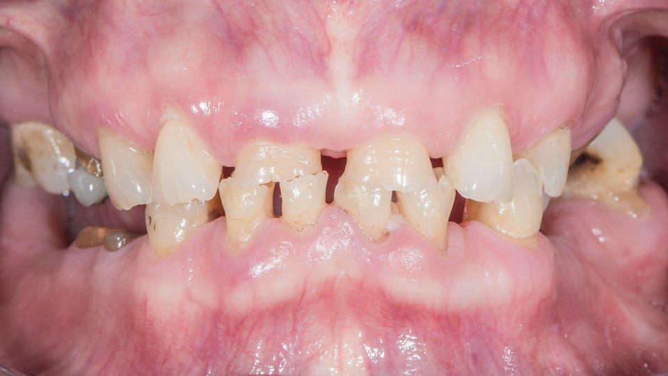 Hampaan poiston jälkeen hampaita ei ole korvattu.