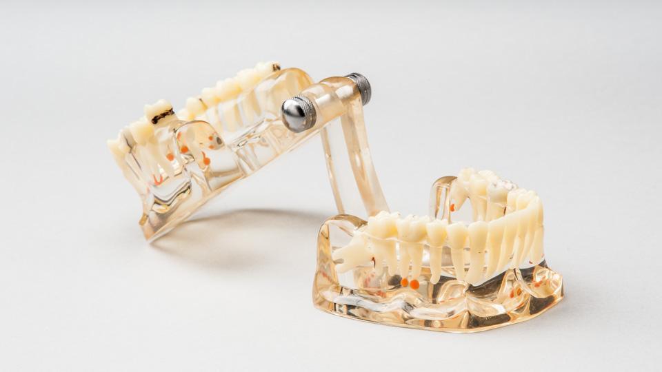 Tulehtunut-hammas