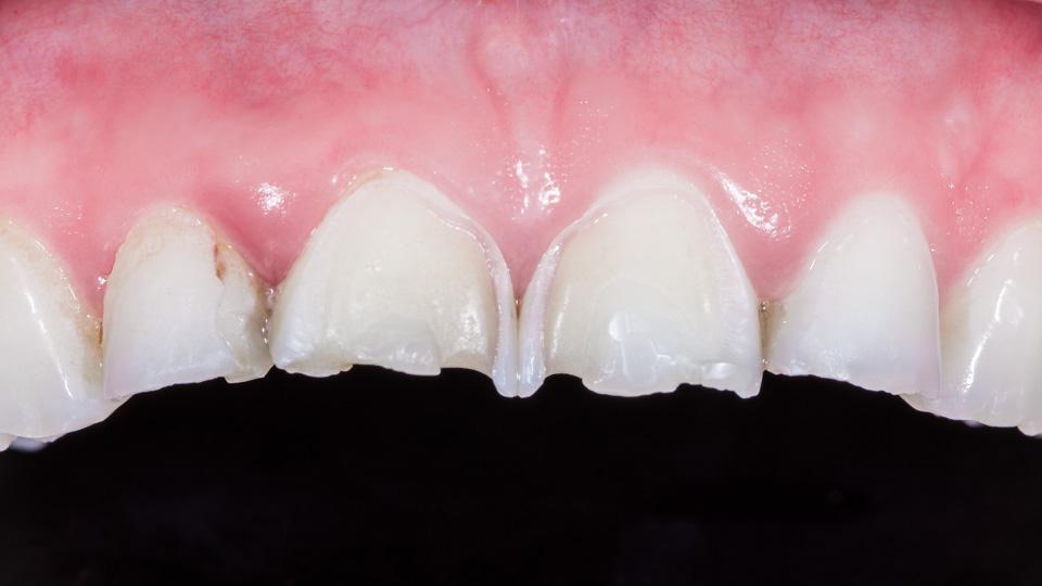 Hampaiden vihlonta voi johtua hammaseroosiosta. Paljastunut hammasluu on hyvin vihlonta-arka.