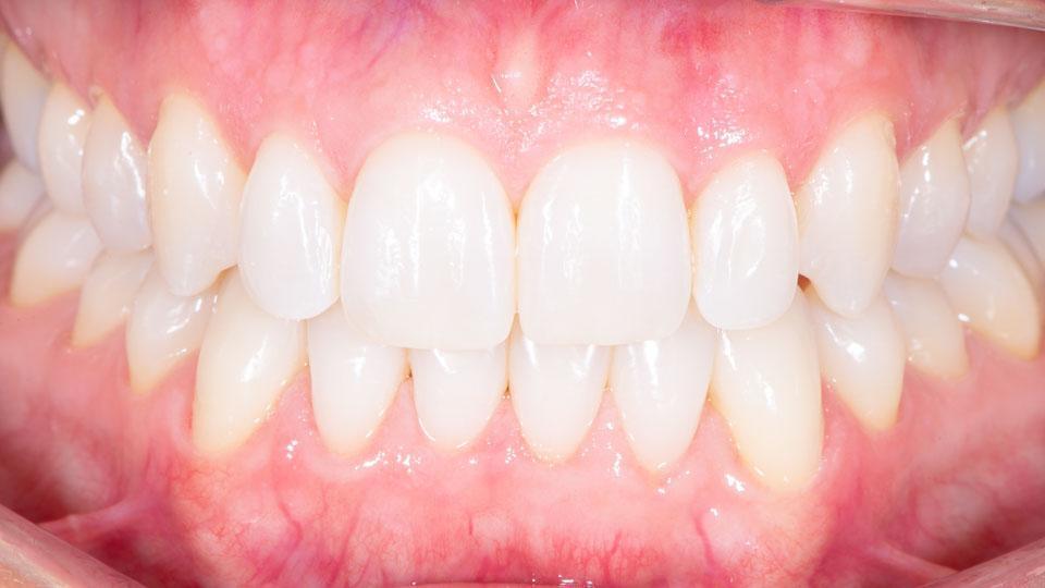 Hampaat Invisalign-oikomishoidon jälkeen. Hoito toteutettiin Helsingin Ruoholahdessa vuonna 2020.