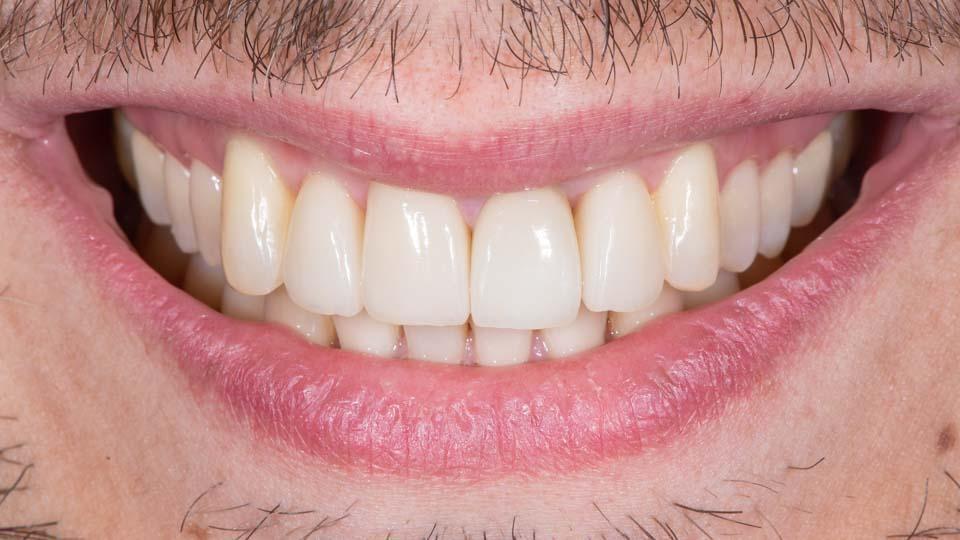 Valmiit keraamiset kuoret hampaissa