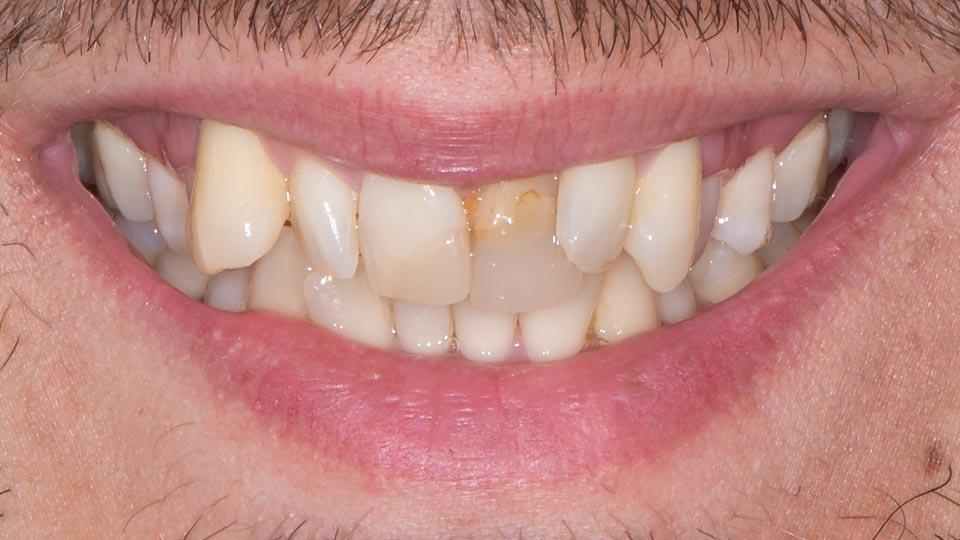 Hymykuva ennen etuhampaiden korjausta