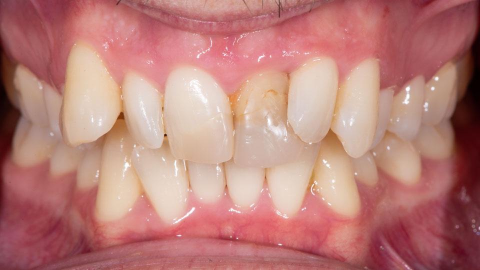 Kuva ennen hammaskuorten hoitoa