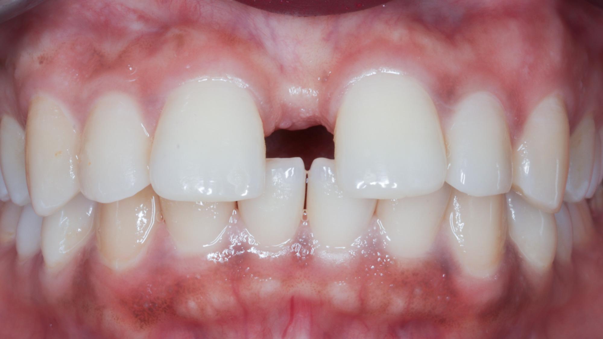 Hammasrako tai rako hampaiden välissä